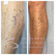Caso Varices antes y despues - Clinica Dosio - Paciente real