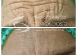 Toxina Botulinica - Clinica Dosio - Paciente real