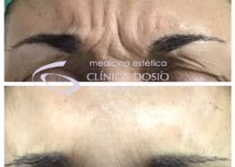 Toxina Botulinica - antes y despues - Clinica Dosio