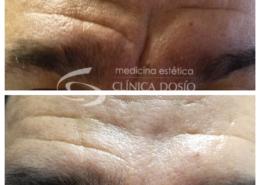 Toxina botulinica en hombre - Clinica Dosio - Paciente real