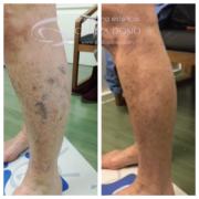 Tratamiento antes despues varices - Cllinica Dosio - Paciente real