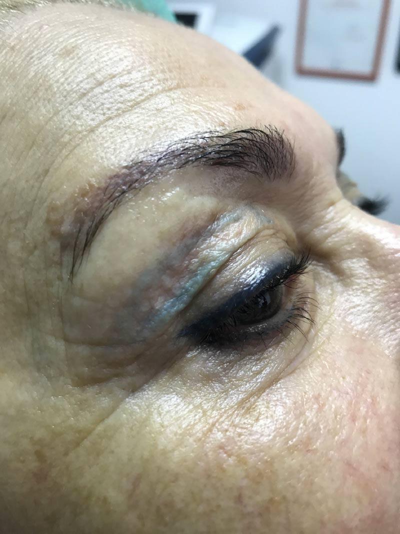 1. Blefaroplastia sin cirugía - ANTES