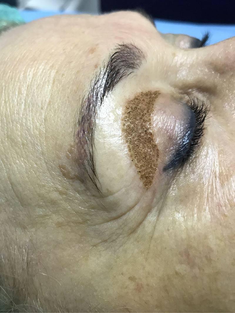 2. Blefaroplastia sin cirugía - DURANTE