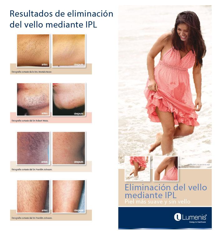 laser-m22-tratamiento-depilacion