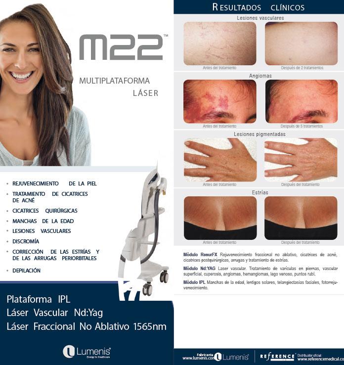 laser-m22-tratamientos-piel